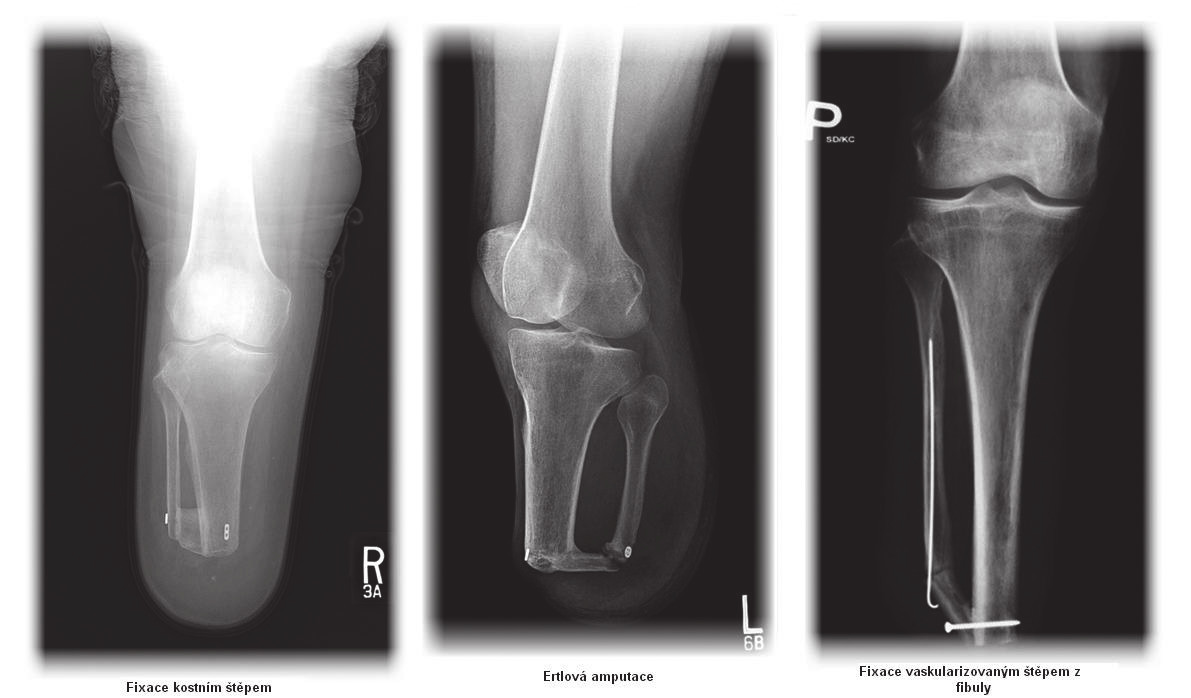 Fig. 12.1. The method of fixation of calf bones as mentioned in the text (left – fixation with bone graft, center - Ertl's amputation, right – fixation with vascularized bone graft from fibula)