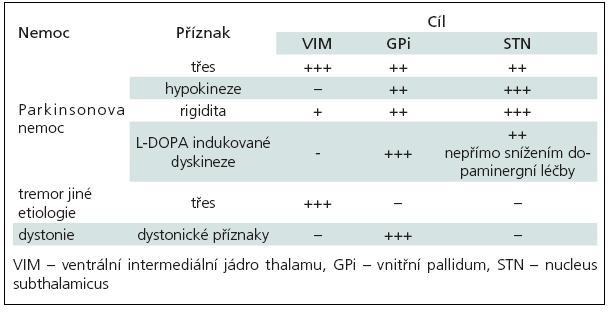 Ovlivnění příznaků extrapyramidových poruch dle lokalizace DBS.