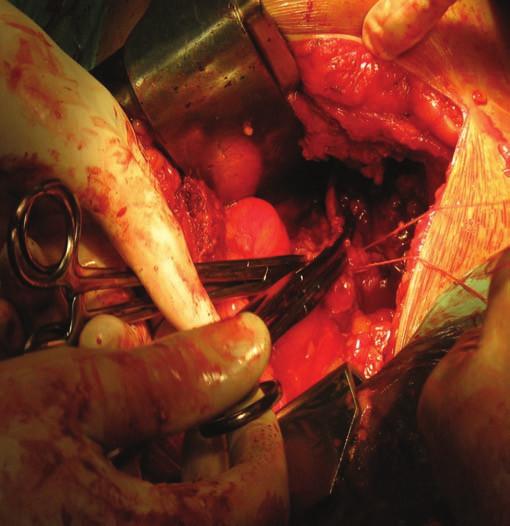 Nefrektomie – podvaz cévní stopky před odstraněním ledviny s nádorem.