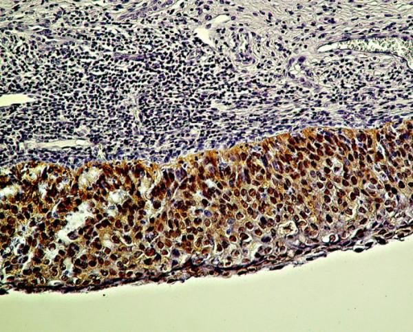 Difúzna pozitivita farbenia antigénu p16 zasahuje celú vrstvu epitelu pri CIN III/CIS/HSIL. Zväčš. 300x