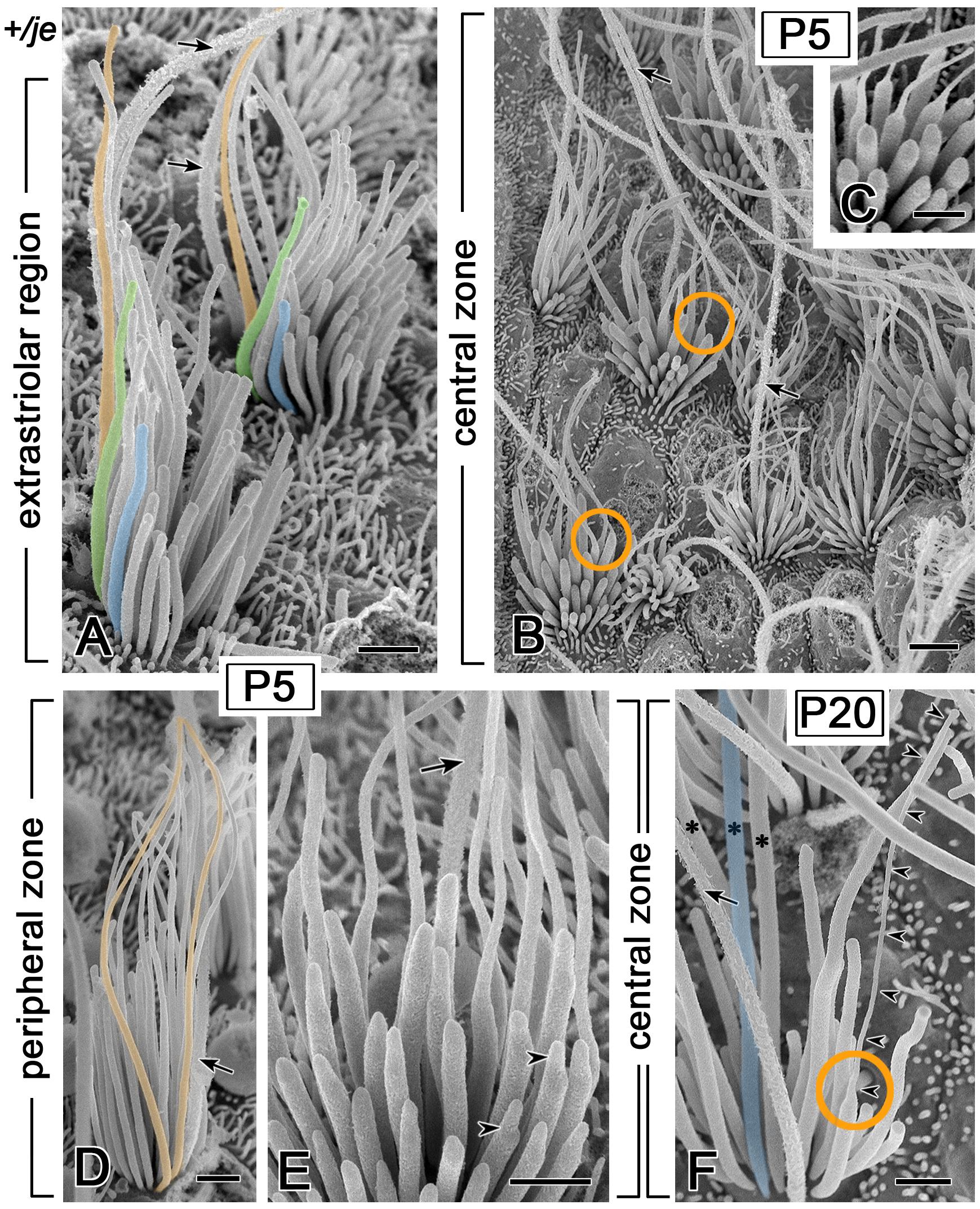 Transient tapering of stereocilia on the vestibular hair cells of <i>+/je</i> mice.
