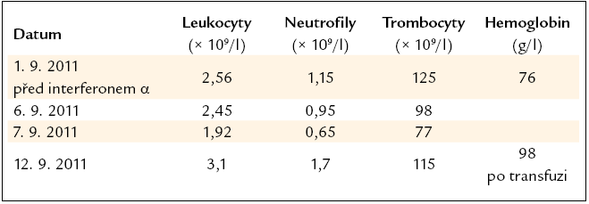 Vývoj počtu leukocytů, neutrofilních granulocytů a trombocytů v prvních dnech léčby interferonem α v dávce 1,5 milionů jednotek 3krát týdně. Neobvykle velký pokles vedl k zastavení podávání interferonu α po 3 injekcích.