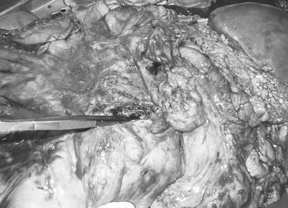 Nález recidivující aorto-enterální píštěle při pitvě Pic. 1. An autopsy finding of a relapsing aortoenteral fistula