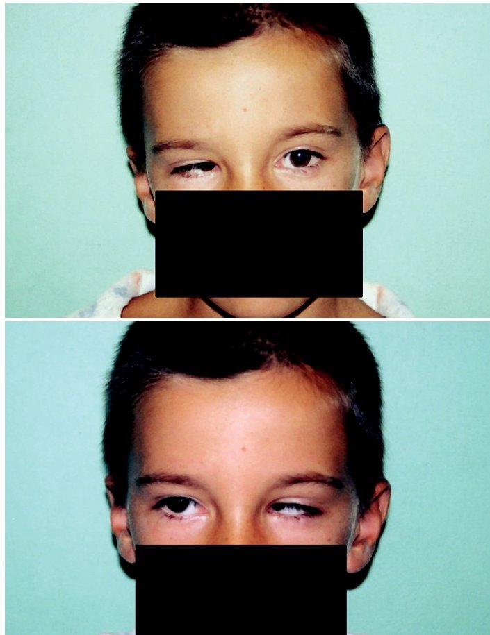 Oboustranný Duanův retrakční syndrom a – pohled doleva, b – pohled doprava