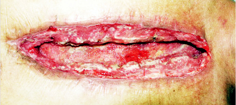 Výsledný stav podtlakové terapie Fig. 5. Deep sternal infection. The result of the VAC therapy