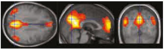 """Zobrazení """"resting state"""" sítě vycházející z ICA analýzy klidových fMR dat. Zobrazeno při p < 0,0001 nekorigovaně. Hlavními oblastmi zapojenými do DMS s největší intenzitou signálu (barvy blížící se žluté/bíle) jsou zadní cingulum/precuneus, ventromediální prefrontální kortex/přední cingulum a gyrus angularis/lobulus parietalis inferior bilaterálně."""