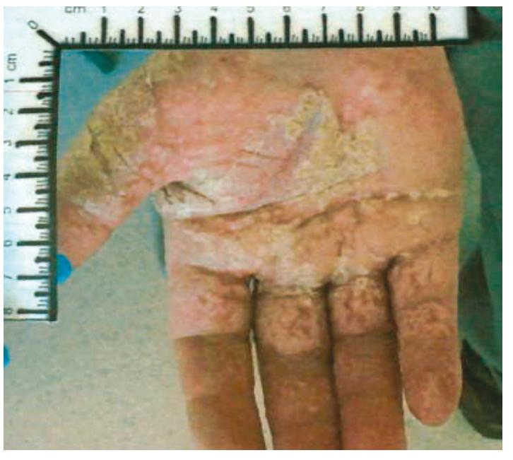 Obr. 1: Nález toxicity na dlaních