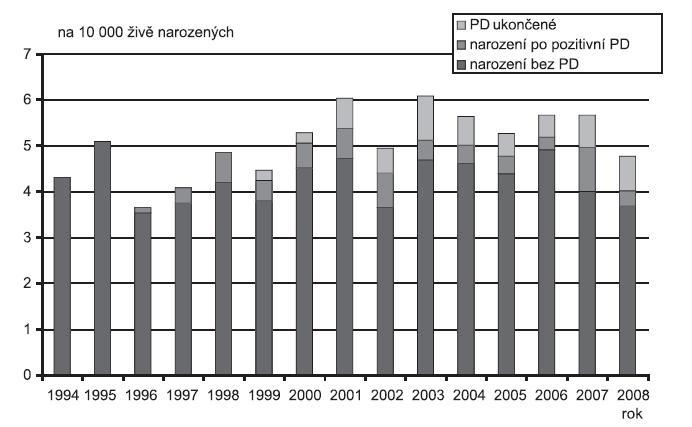 Incidence koarktace aorty (Q 25.1) v ČR, 1994 - 2008, Zdroj: Národní registr vrozených vad – ÚZIS, 2009