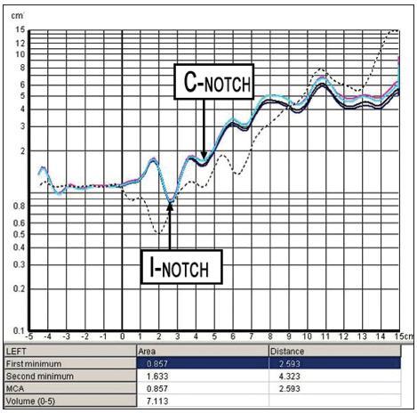 Grafické znázornění vyšetření akustickou rinometrií s vyznačením I- notch (I - Istmus, označuje nosní chlopeň) a C- notch (C- Concha, oblast hlavy dolní skořepy). V tomto případě I- notch odpovídá MCA (Minimal Crossectional Area).