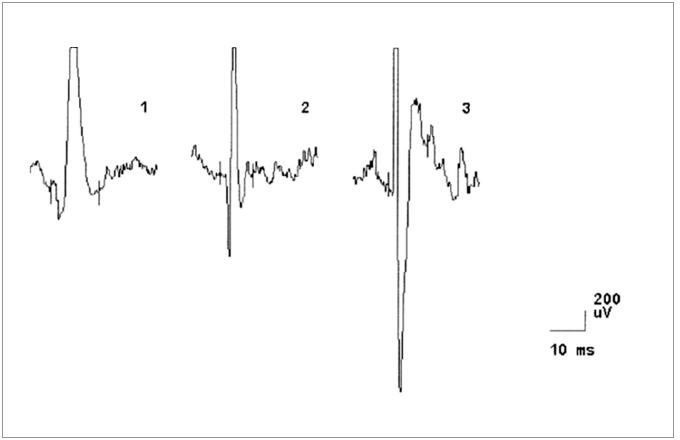 EMG nález při vyšetření musculus biceps brachii vlevo u pacienta č. 4, dokumentující změny v obraze motorických jednotek neurogenního typu (vysoká amplituda MUP, polyfázie).