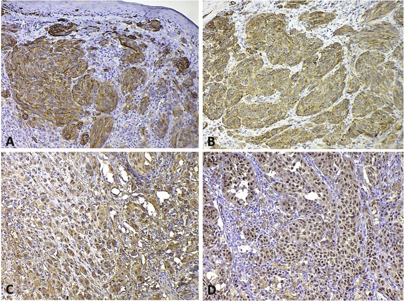 Pozitivita rutinně používaných imunohistochemických biomarkerů v buňkách melanomu A – HMB45 s cytoplazmatickou pozitivitou; B – MelanA/MART-1 s cytoplazmatickou pozitivitou; C – S100 – cytoplazmatická i jaderná pozitivita; D – MiTF – jaderná pozitivita.