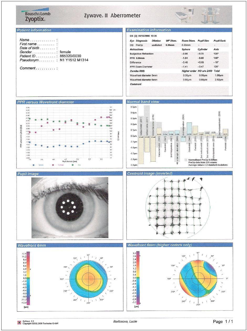 Aberometrické vyšetření oka levého před operací Lasik