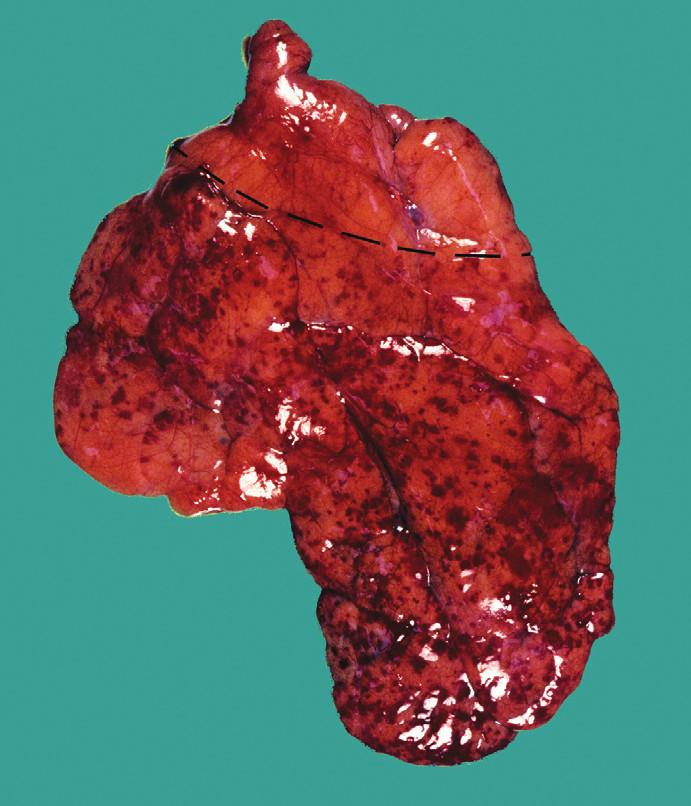 Beckwithova známka – absence petechií v zadní horní části brzlíku u případu SIDS (oblast chybění petechií vyznačena přerušovanou čarou). Foto R.W. Byard, The University of Adelaide, Australia.