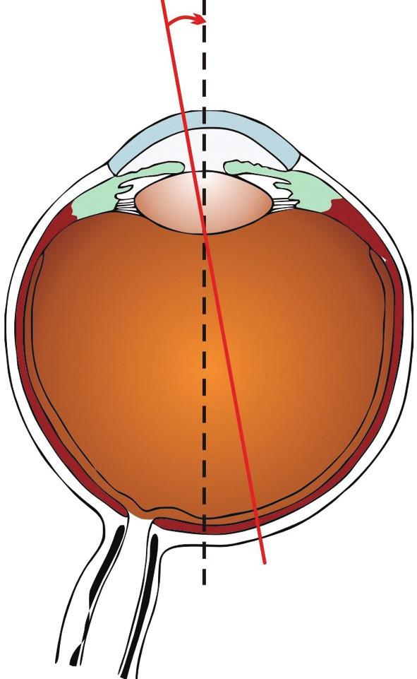 Úhel kappa je úhel, který svírá osa vidění (spojnice mezi fixačním bodem a foveu) a pupilární přímka (přímka jdoucí středem zornice kolmo na rohovku)