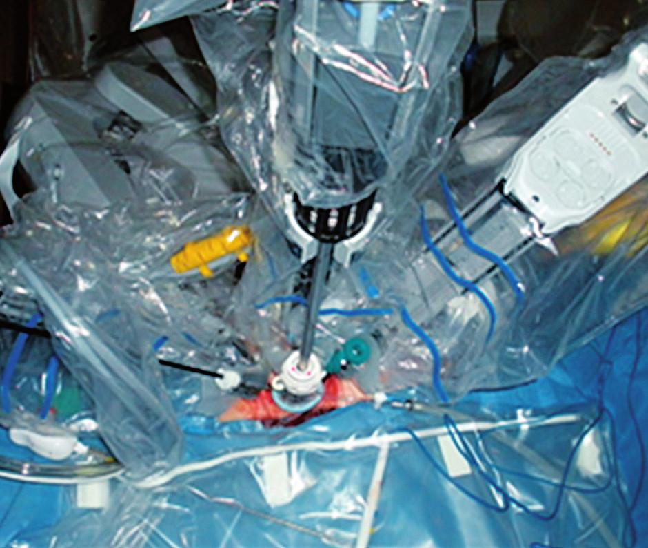 Klasický Da Vinci S při robotické LEES Fig. 1. Standard Da Vinci system at robotic LESS