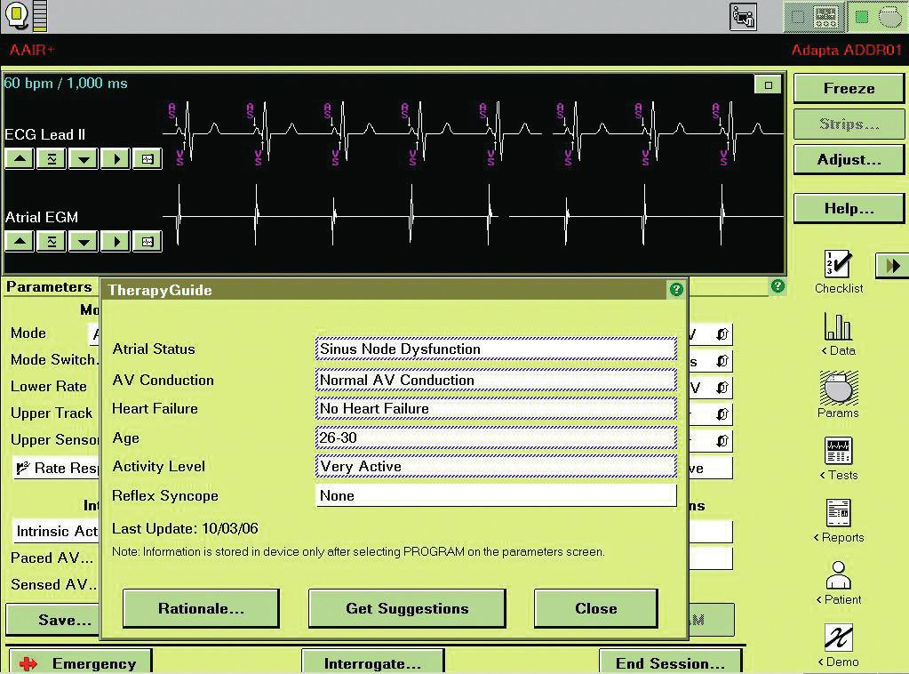 """TherapyGuide: Ukázka charakterizace pacienta pro návrh změn v programaci. K získání návrhu změn programace je nutno stisknout tlačítko """"Get Suggestions""""."""