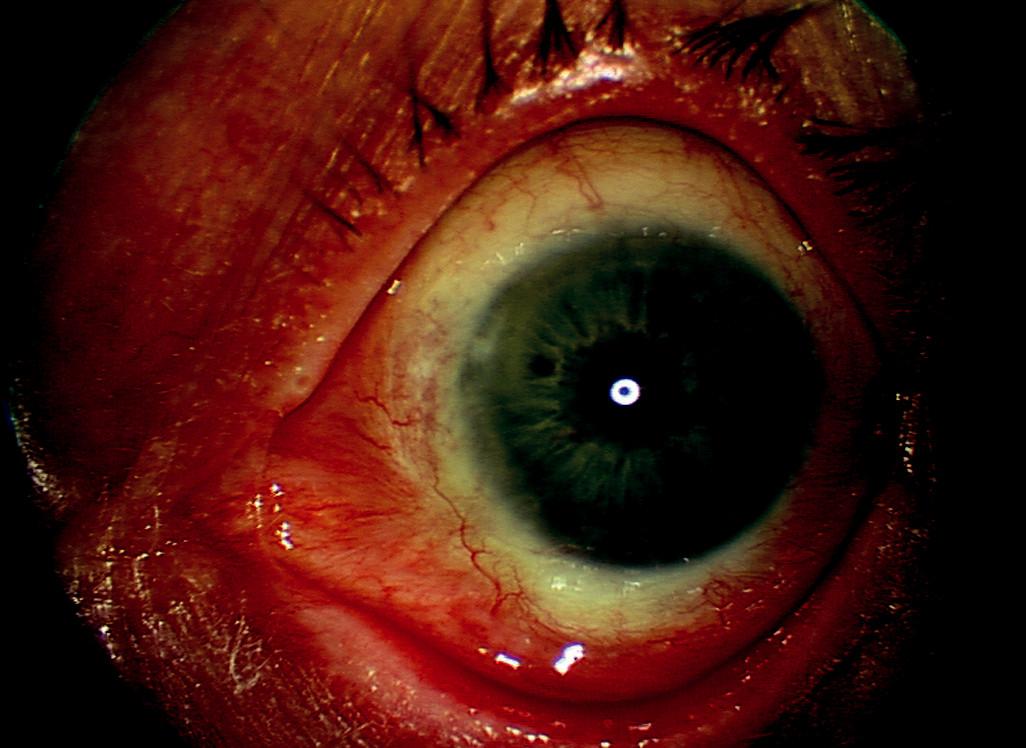 Levé oko – 4 roky po poslední reoperaci