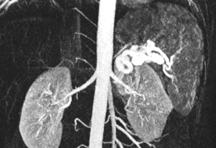 Nález aneuryzmatu lienální tepny (magnetická rezonance) Fig. 2. A finding of the lienal artery aneurysm (MRI)