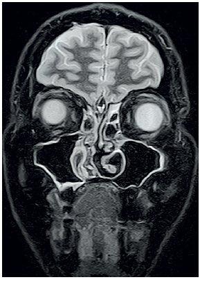 MRI očnic STIR, koronární řez – výrazná regrese infiltrátu vlevo