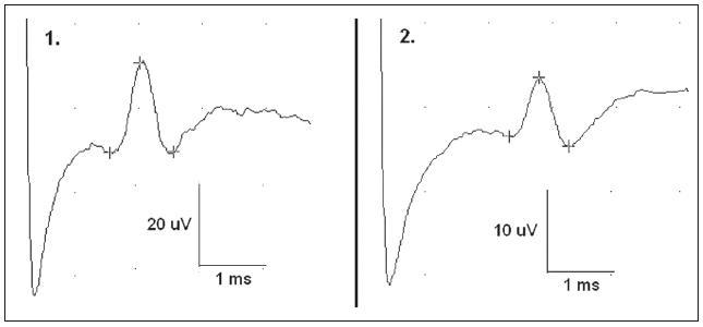 Normální SNAP n. cutaneus antebrachii posterior na zdravé straně u pacientů 1 a 2.