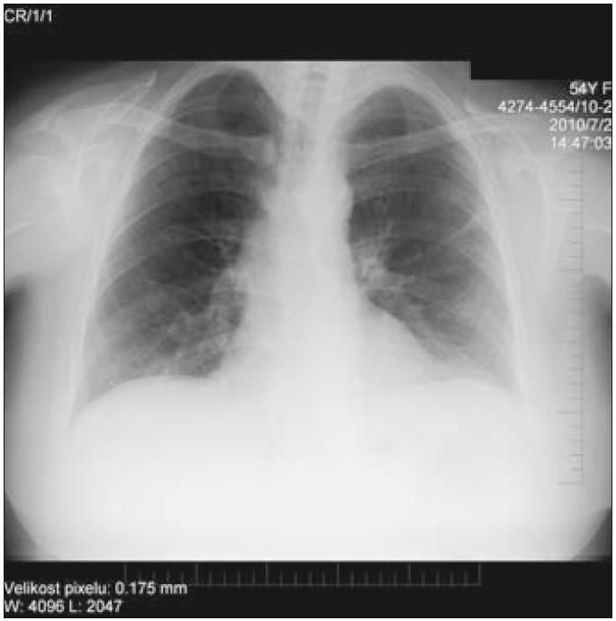 Prostý PA RTG snímek hrudníku nativ. Transparence plicního parenchymu vpravo apikálně a oboustranně v okolí hilů je zřetelně snížená, oboustranně zesílená interlobia, oboustranně při bazích plic naopak se transparence plicního parenchymu difuzně zvyšuje více, než bývá obvyklé. Kontury bránice jsou hladké, siny kostofrenické jsou volné. Srdce příčně uložené, nerozšířené (Popsal doc. MUDr. Petr Krupa, CSc., přednosta Kliniky zobrazovacích metod FN u sv. Anny v Brně.).