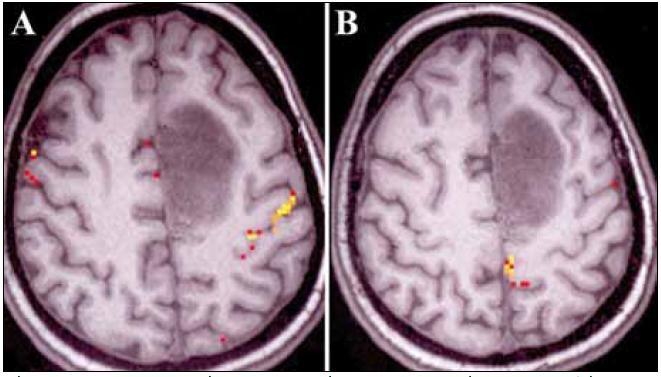 Pacient č. 12. Funkčná magnetická rezonancia zobrazujúca vzťah nádoru ku PMK pre pohyby hornej (a) a dolnej končatiny (b).  Vyšetrenie realizované prof. Beisteinerom (Study Group Clinical fMRI , Department of Neurology, Medical University of Vienna, Austria, roland.beisteiner@meduniwien.ac.at)
