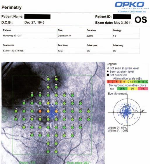 Záznam výsledného měření pacienta na mikroperimetru OCT/SLO (vlastní fotoarchiv).