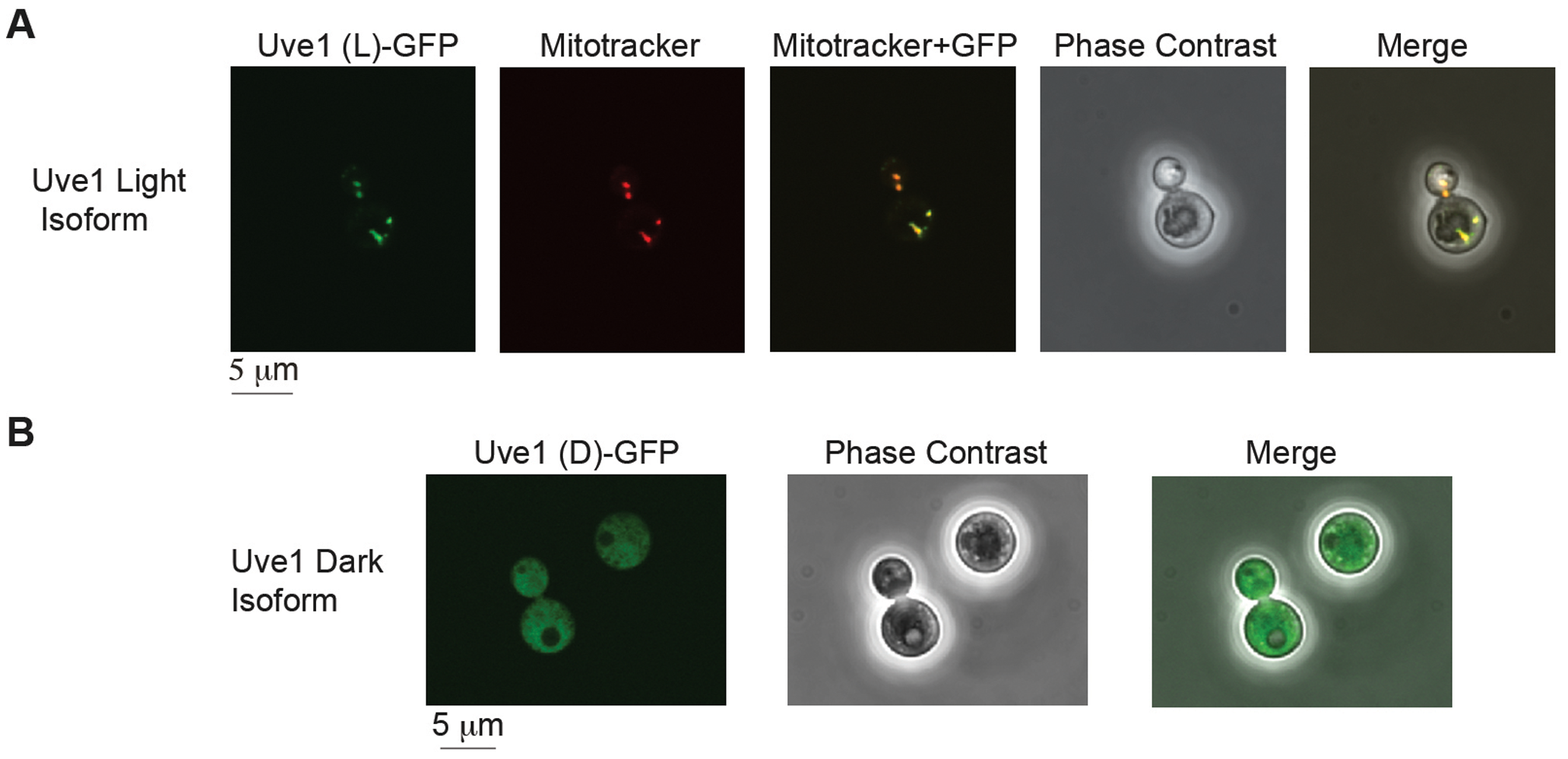 Subcellular localization of Uve1 (L)-GFP and Uve1 (D)-GFP from <i>C. neoformans</i> var. <i>neoformans</i> in the vegetative yeast cells of <i>C. neoformans</i> var. <i>grubii</i> (A) Uve1 (L)-GFP localization and (B) Uve1 (D)-GFP localization.