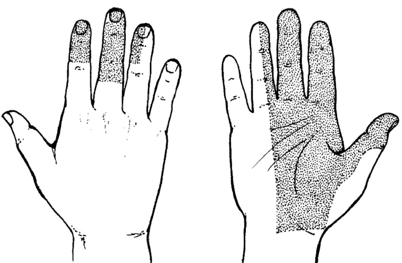 Syndrom karpálního tunelu – porucha čití. Porucha čití na dlani a I.–III.prstu, radiální polovině IV. prstu a také dorzální plochy distálních dvou článků II. až IV.prstu. Radiální část thenaru je inervována r. palmaris n. mediani.
