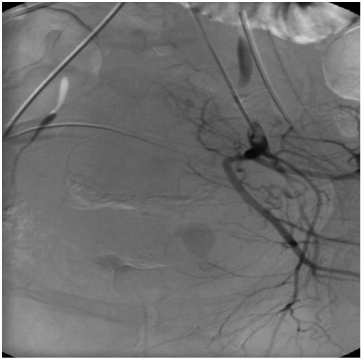 Obr. 1C. Kontrolní angiografie po embolizaci bez známek pokračující extravazace