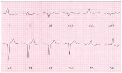 EKG u pacienta se stenózou aorty, blokáda levého raménka.