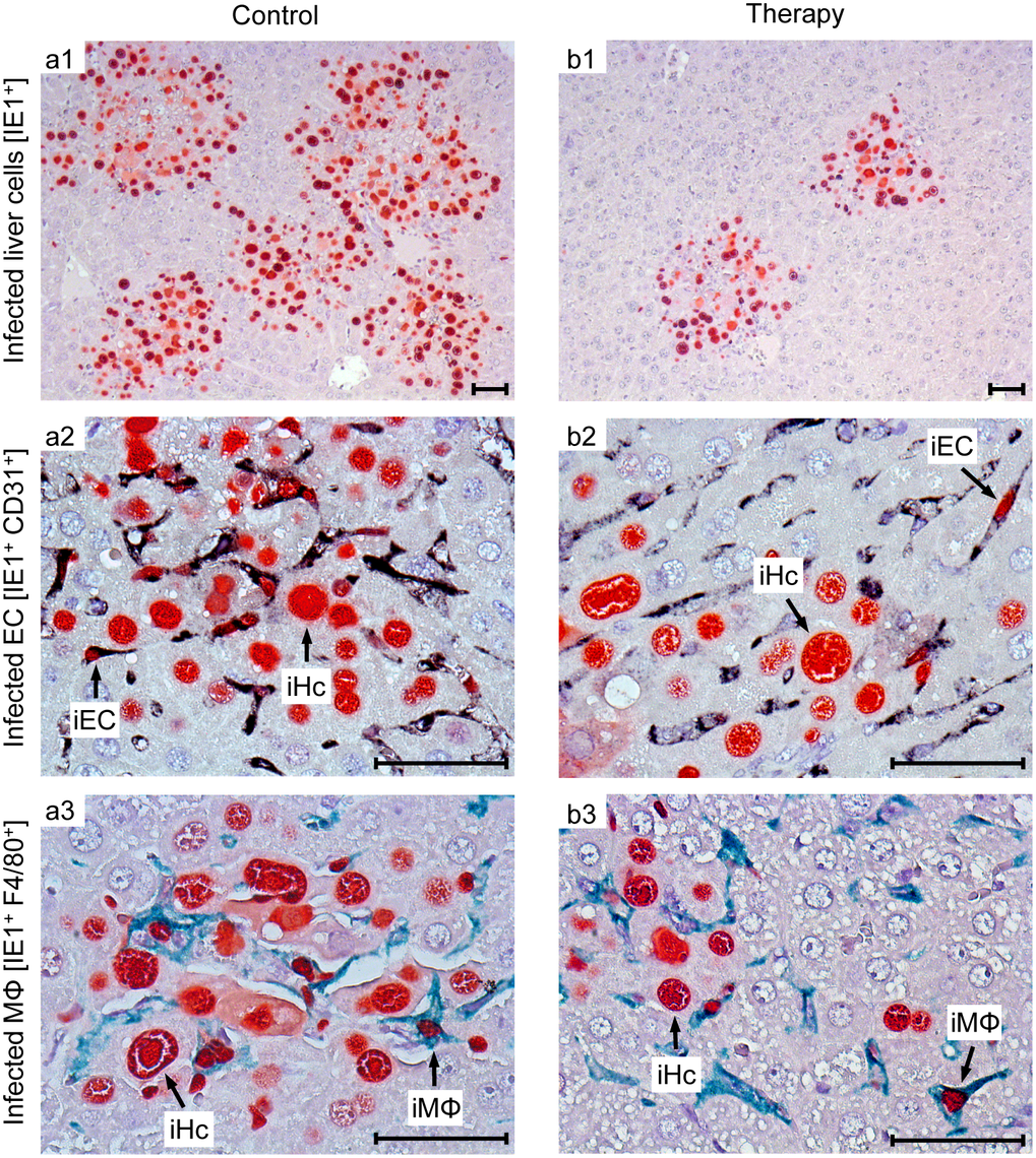 Reduced viral spread and histopathology in liver tissue, differentiated by infected cell type, as correlate of protection by human TCR<sub>NLV</sub>-transduced T cells.