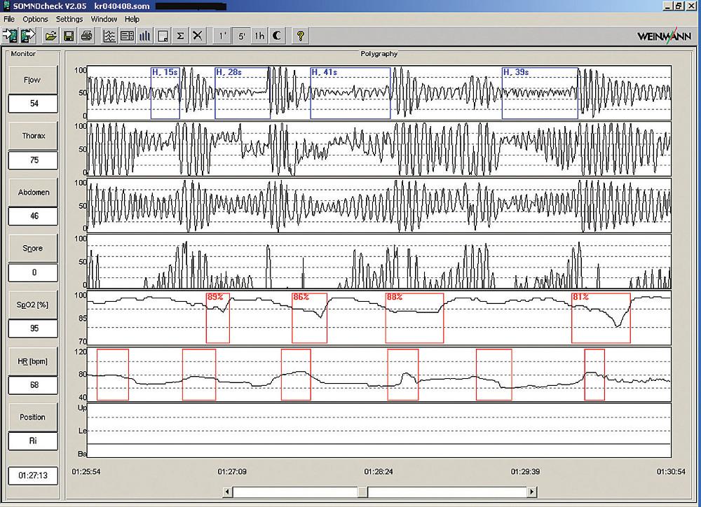 Ukázka 5minutové polygrafie s typickými hypopnoemi.