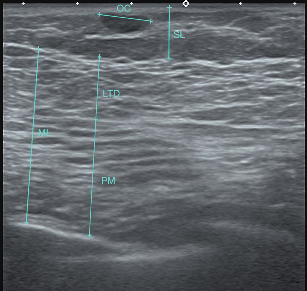 Typical postoperative ultrasound image. Muscular layer (ML) after fat grafting is shown as a homogeneous structure with significant lipomatous changes without oil cysts or fat necroses. The pectoralis (PM) and the latissimus dorsi (LTD) muscles can be distinguished according to the orientation of muscle fibers. There are single medium size oil cysts (OC) in the subcutaneous layer (SL)