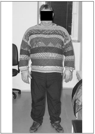 Typická predispozice ukládání tuku v oblasti krku u obézního pacienta s OSA