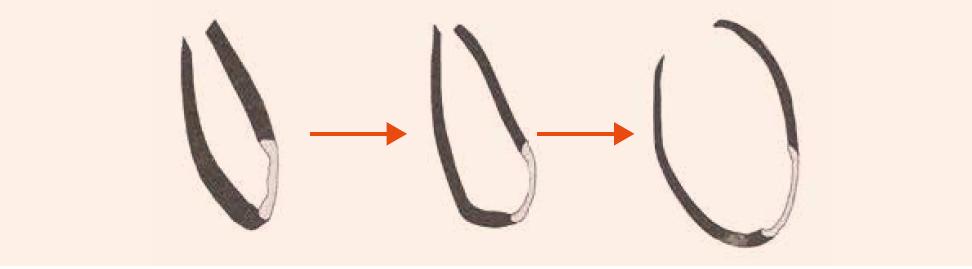 Remodelácia ĽK po infarkte myokardu s následnou dilatáciou komory. Čierna farba – zdravý myokard, biela farba – jazva po infarkte myokardu