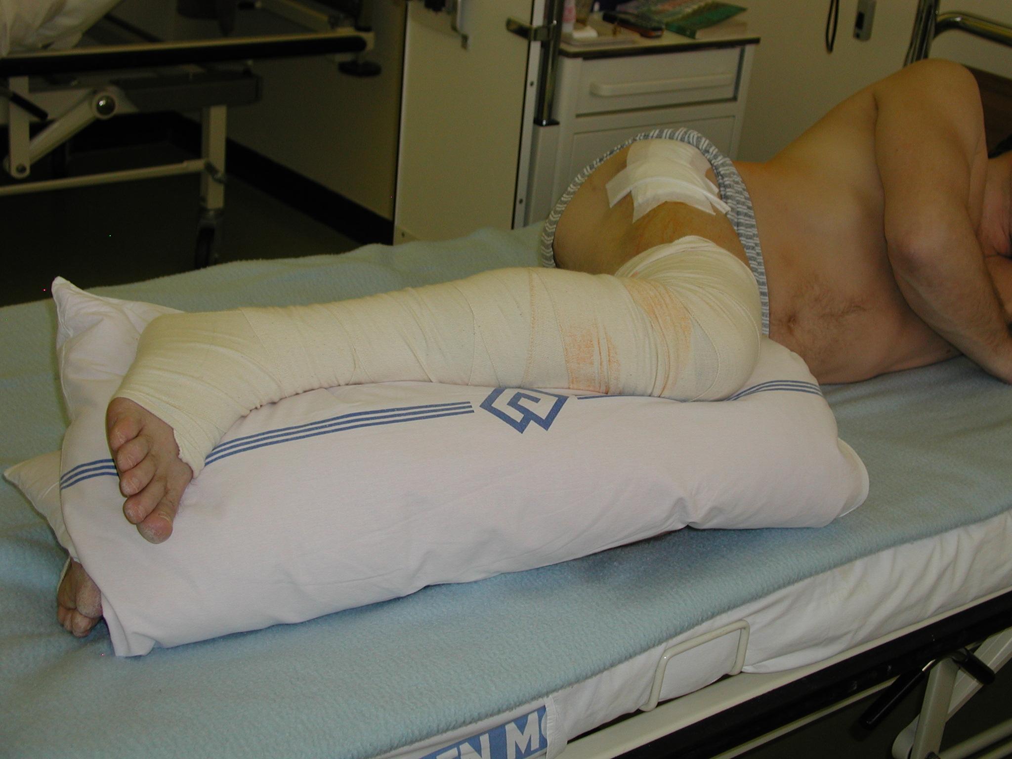Poloha pacienta na boku s polštářem mezi dolními končetinami