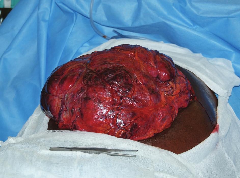 Obr. 2a: Peroperační snímek ukazuje část tumoru vyhřezlou po provedení laparotomie Fig. 2a: Intraoperative image shows a prolapse of the tumour after laparotomy