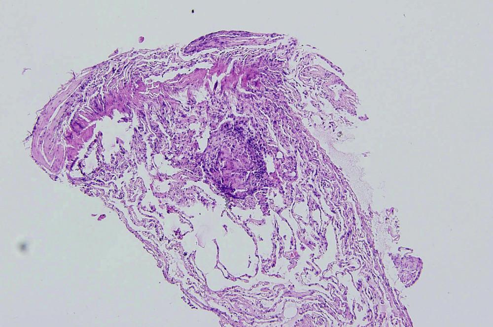 Histologický obraz granulomu u sarkoidózy