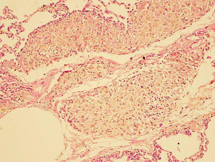 Zachycený jemně zrnitý pigment v histocytárních infiltrátech (zvětšení 100krát)