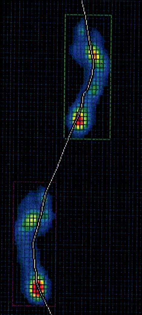 Obr. 7c. Hodnocení stoje a chůze u pacienta s aspekčním nálezem ploché nohy pomocí plantogramu (7a), stoje na FDM desce (7b) a chůze na FDM desce (7c).