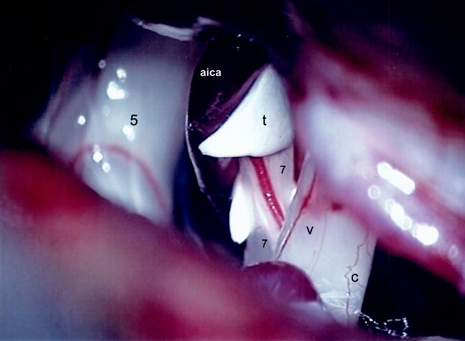 Mikroskopický pohľad do pravého PC uhla. Izolácia n. VII od aica troma kúskami teflónu.