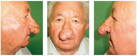 Pacient s veľkou rinofymou pred operáciou.