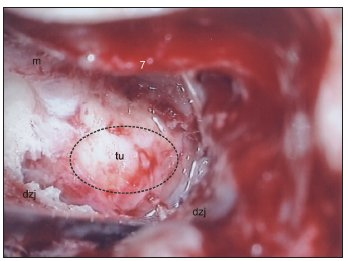 Translabyrintný prístup vpravo – vestibulárny schwannom veľkosti 3 cm sa tlačí do priestoru temporálnej kosti smerom k operatérovi. Elipsou je znázornená oblasť, kde sa urobí debulking. Legenda: dzj - dura mater zadnej jamy, m - meatus acusticus internus, 7 - nervus facialis