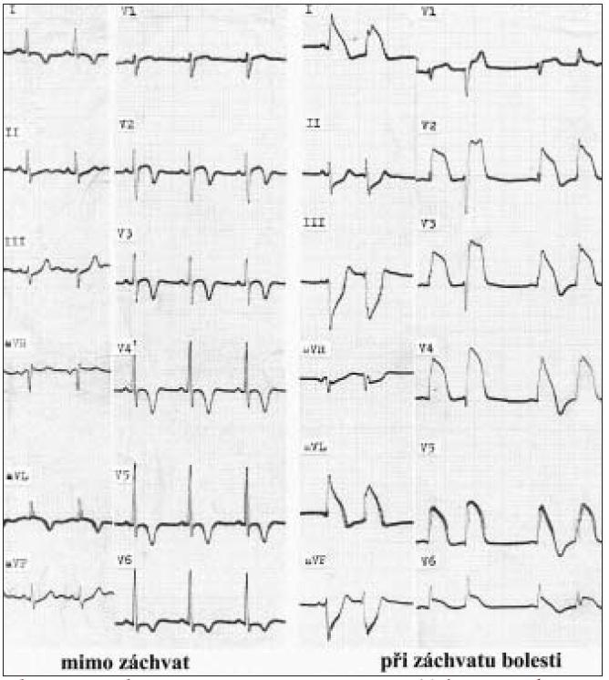 EKG obraz vazospaztické anginy.