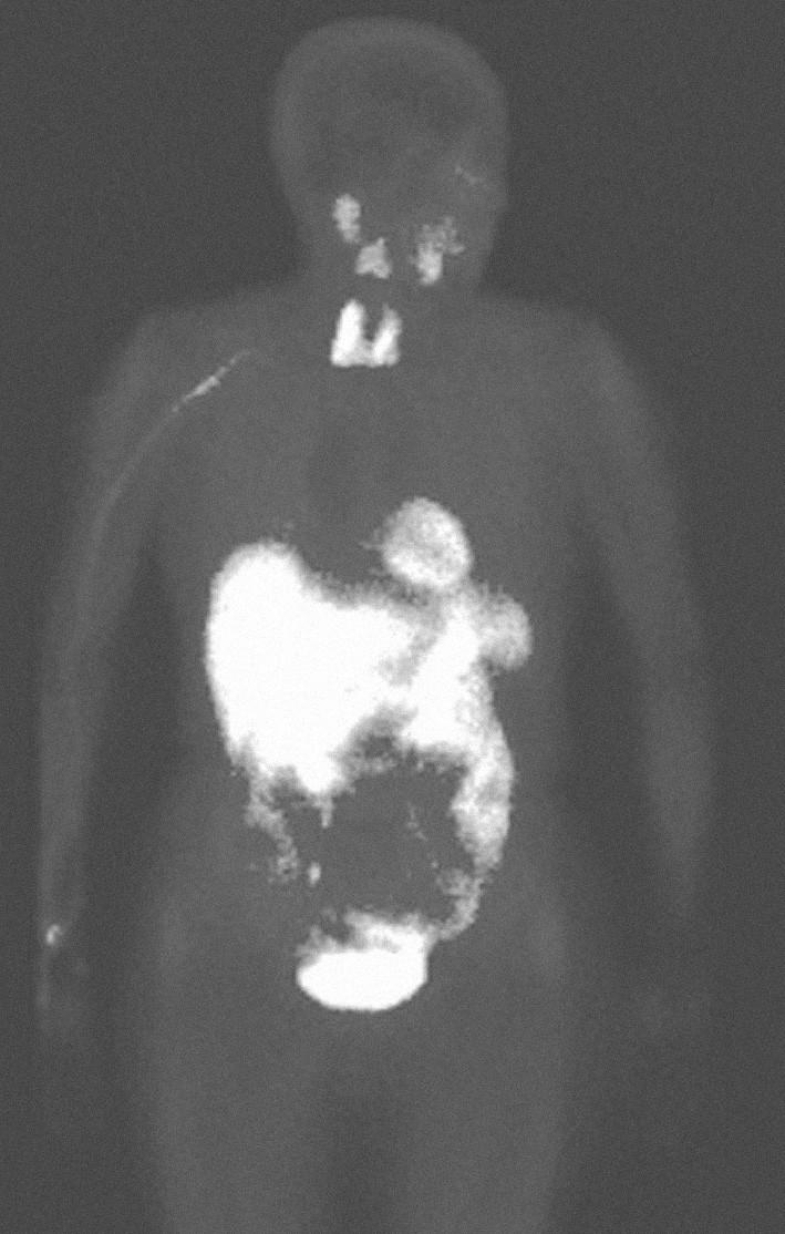 Obr. 3B. Celotělová scintigrafie s Tc-99m-MIBI po léčbě (melfalan + prednison).