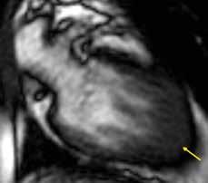 Izolované zesílení svaloviny hrotu levé komory u apikální hypertrofické kardiomyopatie (žlutá šipka); dvoudutinová projekce