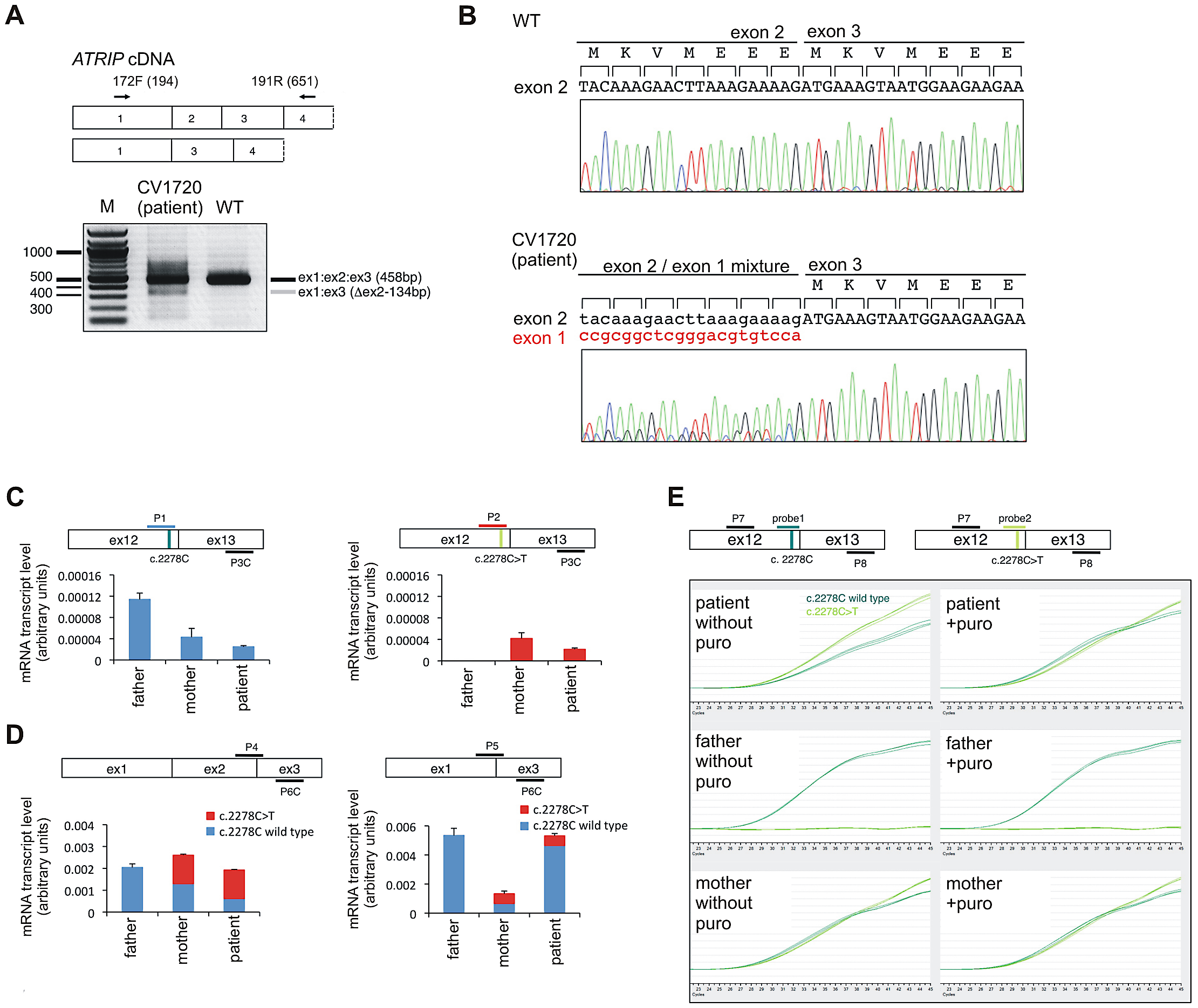 Identification of mutational changes in <i>ATRIP</i> in CV1720.