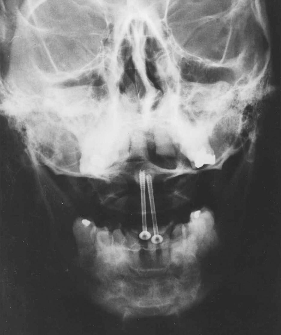 RTG obraz kompresní osteosyntézy kanalizovanými šrouby v axiální ose Fig. 4. X-ray axial view of the compression osteosynthesis with canalised screws