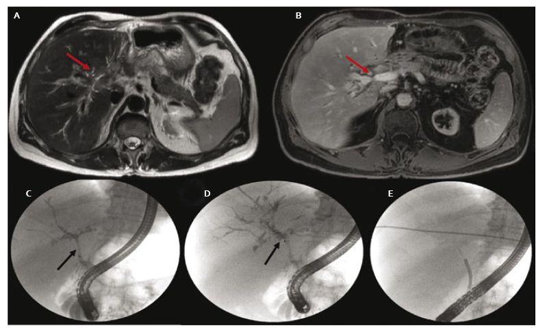 A. MRCP obraz tumoróznej lézie oblasti junkcie hepatikov (šipka), B. stenóza duktus hepatikus communis (šípka), C. stenóza distálneho choledochu (šípka), D. defekty v náplni v oblasti junkcie (šípka), dilatované intrahepatálne žlčovody pravého hepatiku, E. SpyScope<sup>®</sup> v oblasti junkcie počas cholangioskopie. Fig. 4. A. MRCP image of a tumorous lesion in the hilar region (arrow), B. common hepatic duct stenosis (arrow), C. distal stenosis of the choledochus (arrow), D. filling defects at the hepatic junction (arrow), intrahepatic bile ducts dilatation in the right hepatic duct, E. SpyScope<sup>®</sup> placement in the hepatic junction during cholangioscopy.